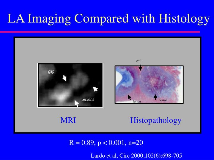 LA Imaging Compared with Histology