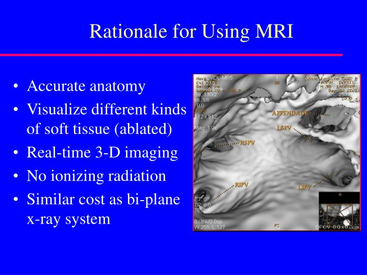 Rationale for Using MRI