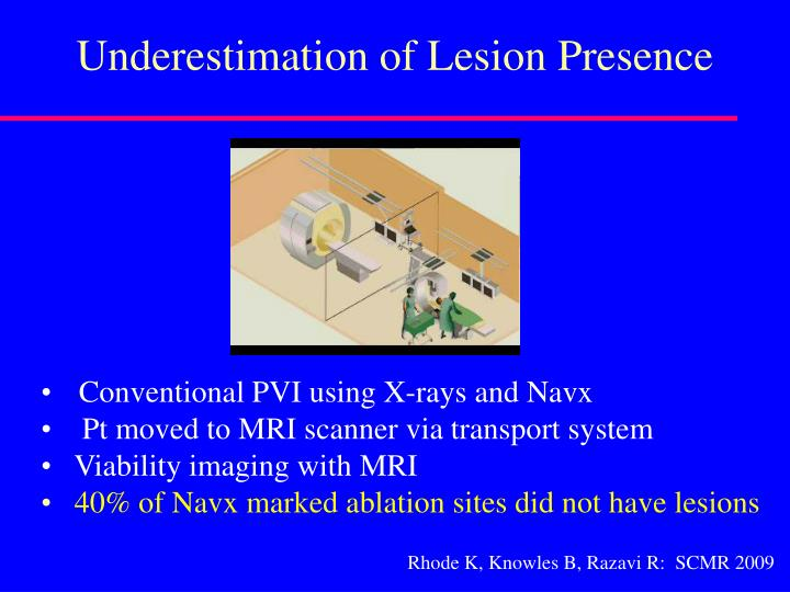 Underestimation of Lesion Presence