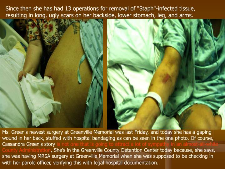 "Since then she has had 13 operations for removal of ""Staph""-infected tissue, resulting in long, ugly..."