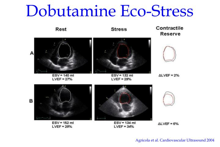 Dobutamine Eco-Stress Test