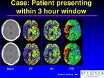 case patient presenting within 3 hour window3