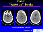 case wake up stroke