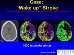 case wake up stroke2
