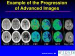 example of the progression of advanced images