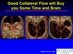 good collateral flow will buy you some time and brain