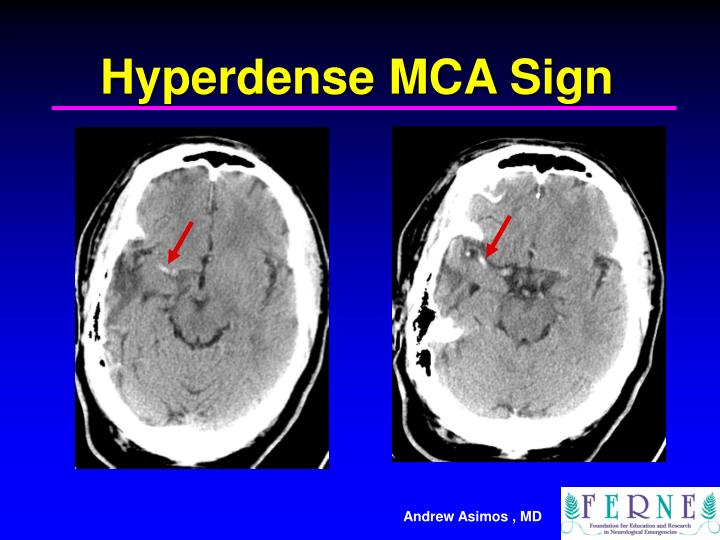 Hyperdense MCA Sign