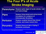 the four p s of acute stroke imaging