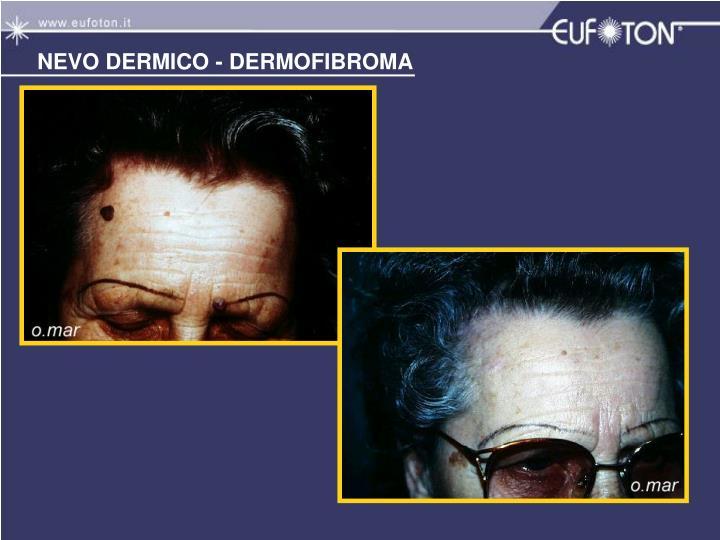 NEVO DERMICO - DERMOFIBROMA