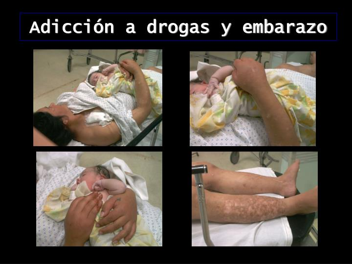 Adicción a drogas y embarazo