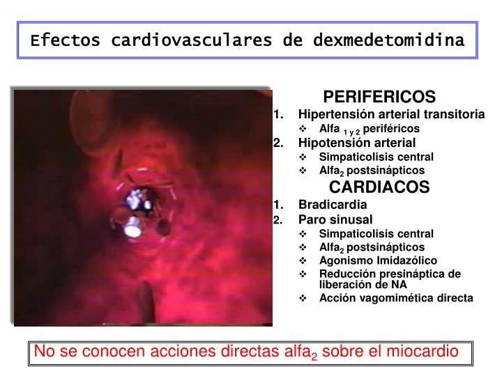 Efectos cardiovasculares de dexmedetomidina