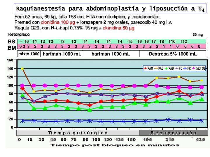 Raquianestesia para abdominoplastía y liposucción a T