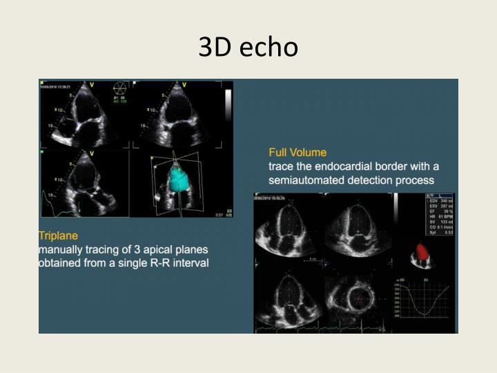 3D echo
