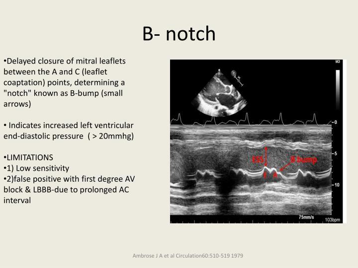 B- notch