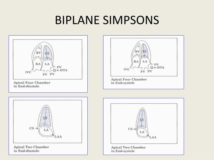 BIPLANE SIMPSONS