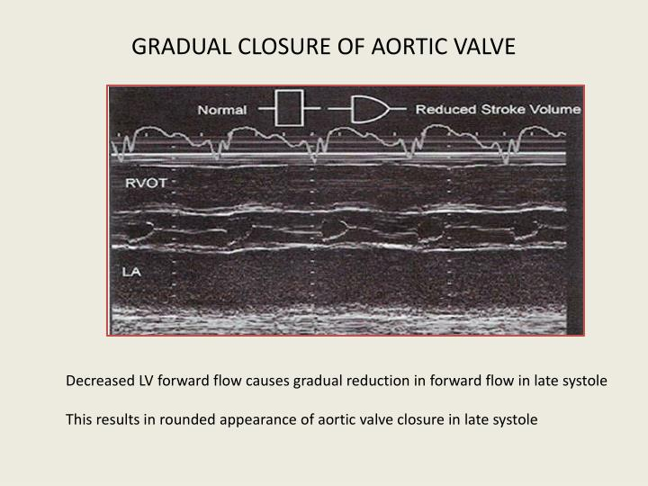 GRADUAL CLOSURE OF AORTIC VALVE