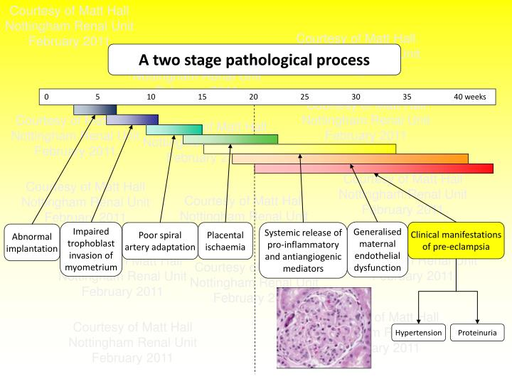 A two stage pathological process