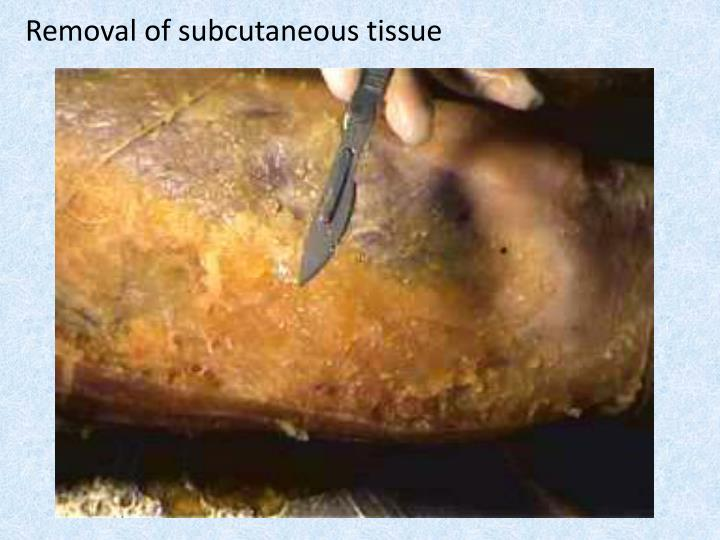 Removal of subcutaneous tissue