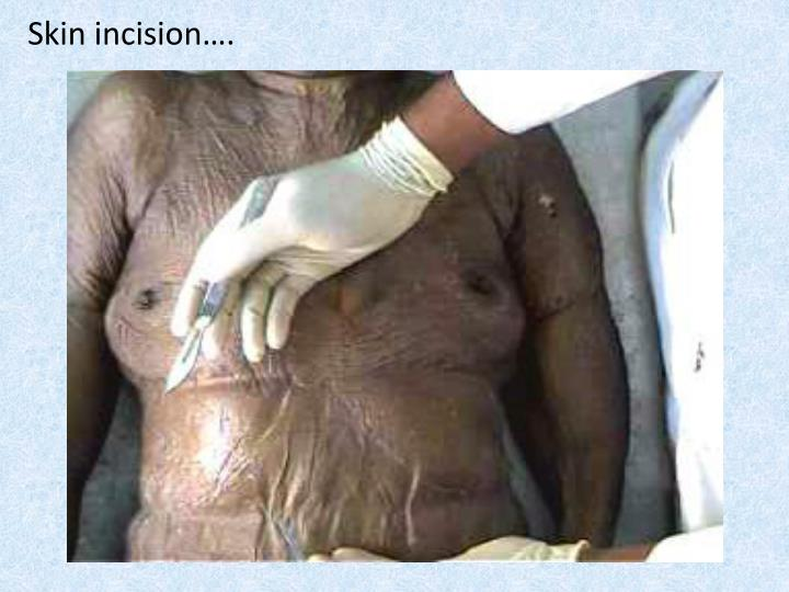 Skin incision….