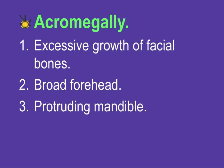 Acromegally.