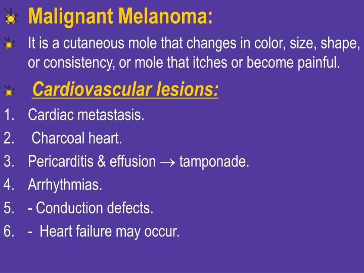 Malignant Melanoma: