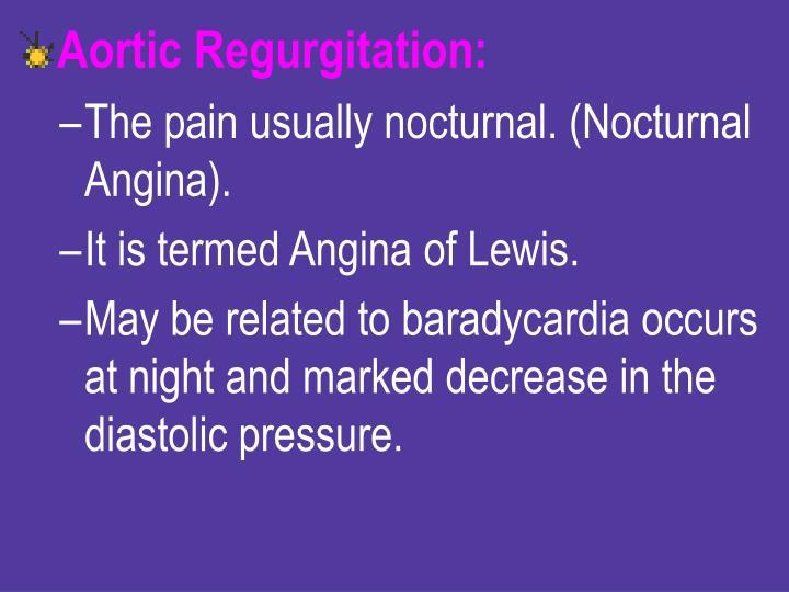 Aortic Regurgitation: