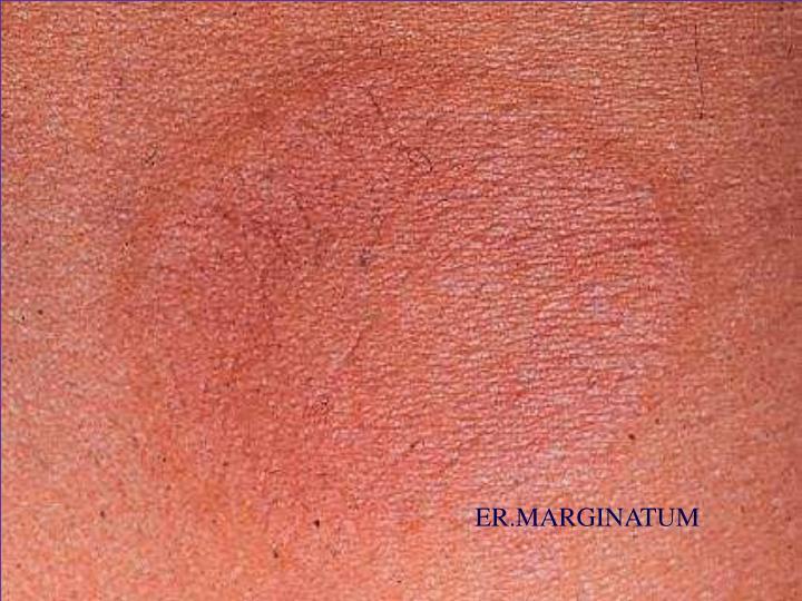 ER.MARGINATUM