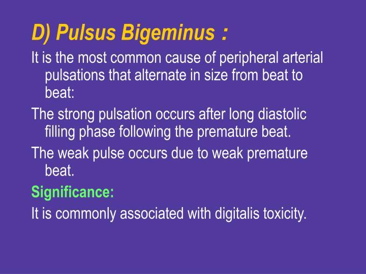 D) Pulsus Bigeminus