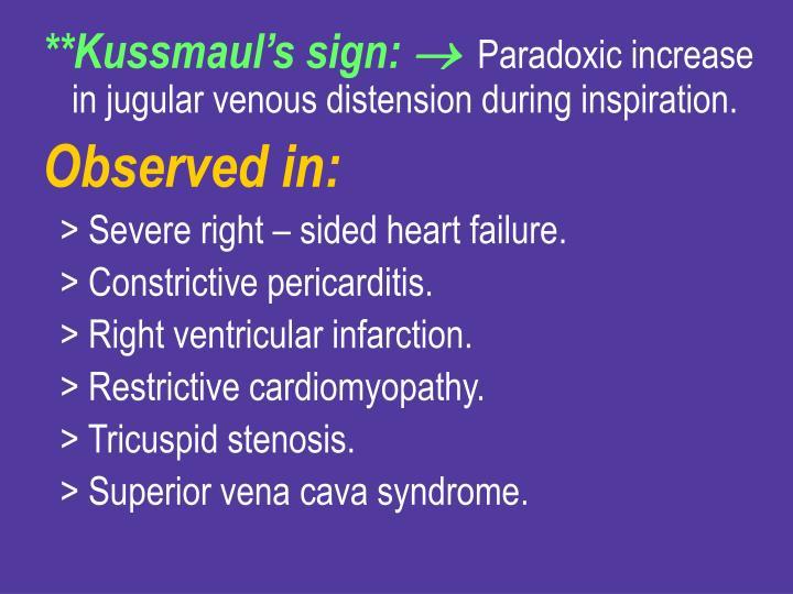 **Kussmaul's sign: