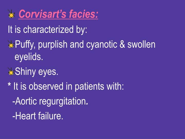 Corvisart's facies: