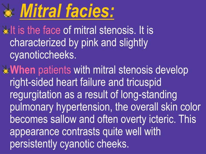Mitral facies: