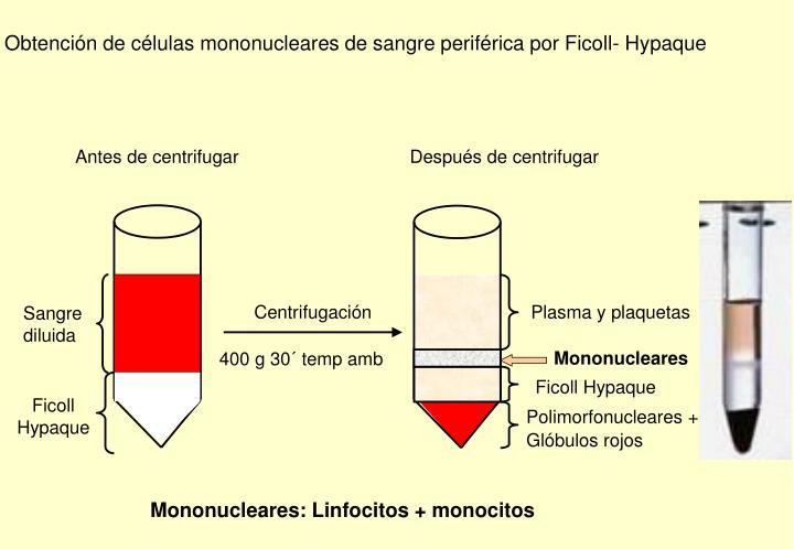 Obtención de células mononucleares de sangre periférica por Ficoll- Hypaque