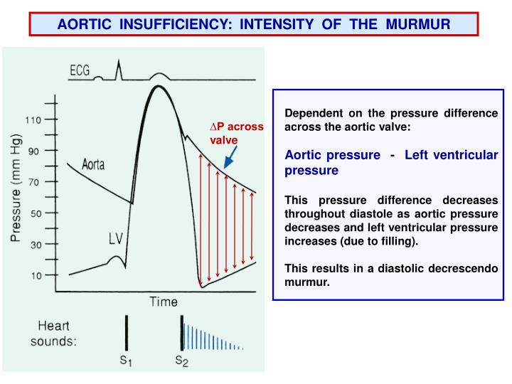 AORTIC  INSUFFICIENCY:
