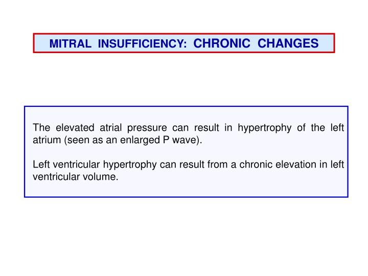 MITRAL  INSUFFICIENCY: