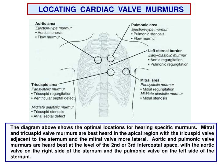 LOCATING  CARDIAC  VALVE  MURMURS