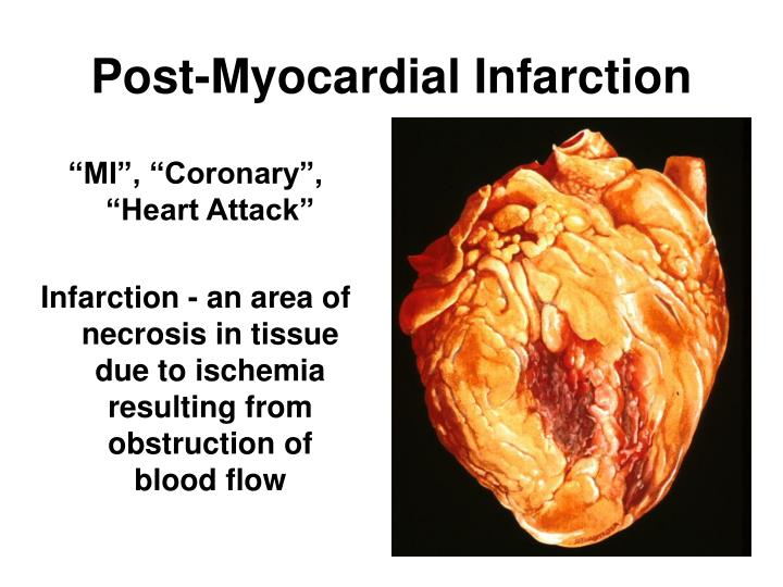 Post-Myocardial Infarction
