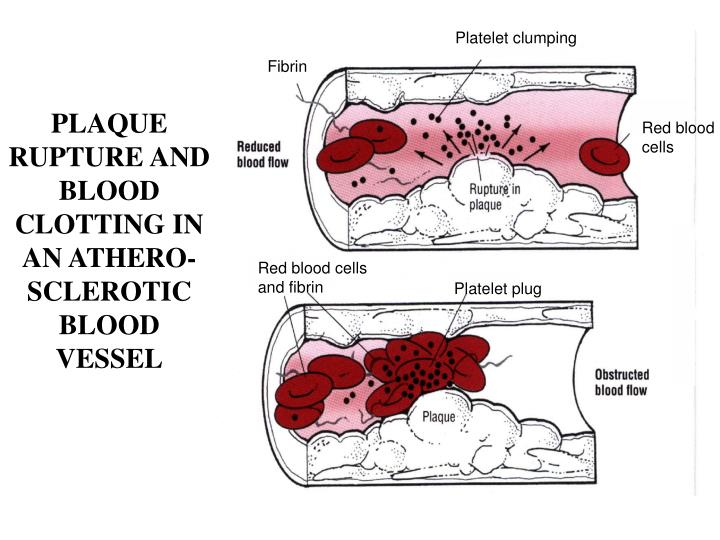 Platelet clumping