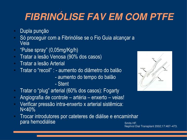 FIBRINÓLISE FAV EM COM PTFE