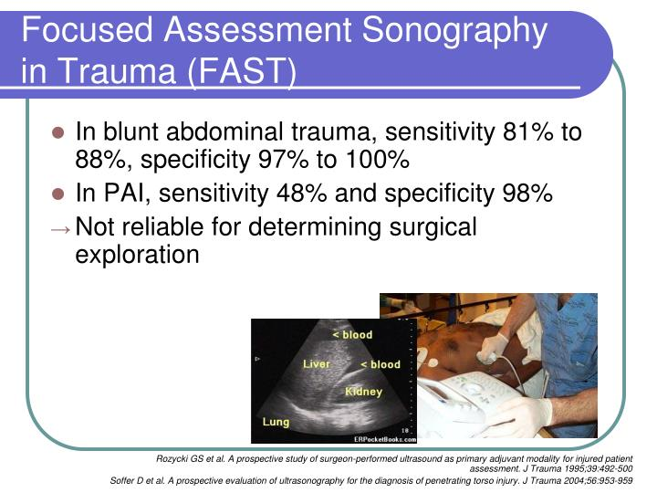 Focused Assessment Sonography in Trauma (FAST)