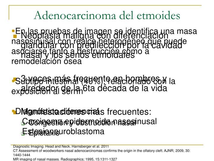Adenocarcinoma del etmoides