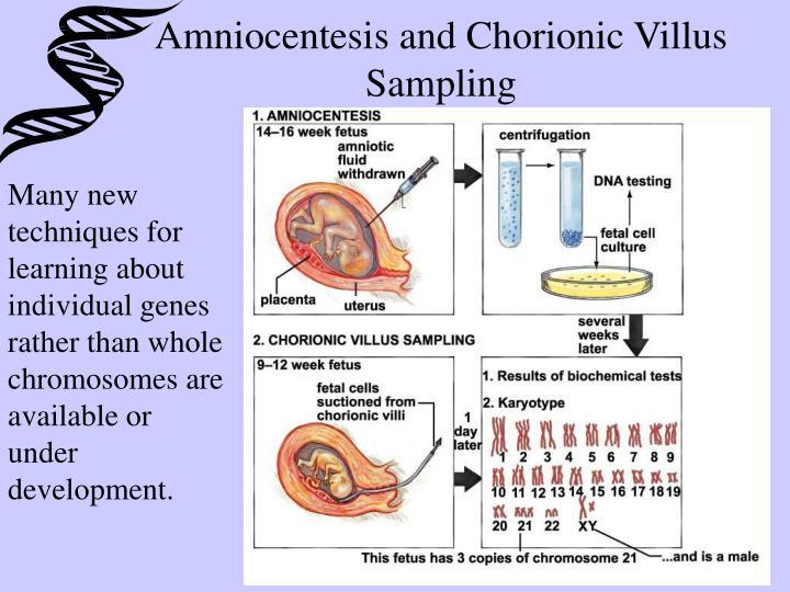 Amniocentesis and Chorionic Villus Sampling
