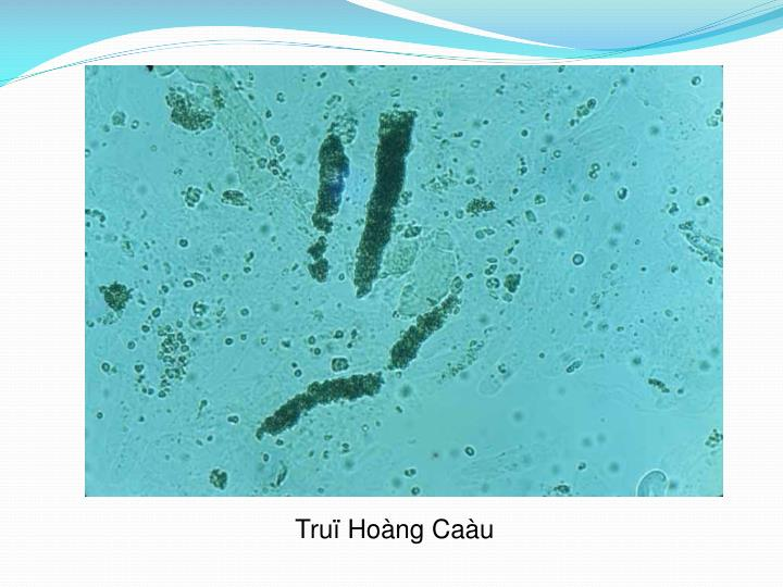 Truï Hoàng Caàu