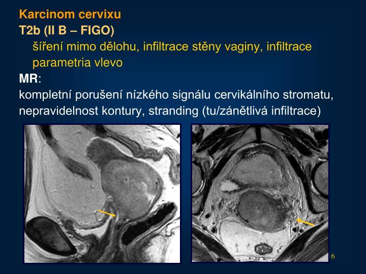 Karcinom cervixu