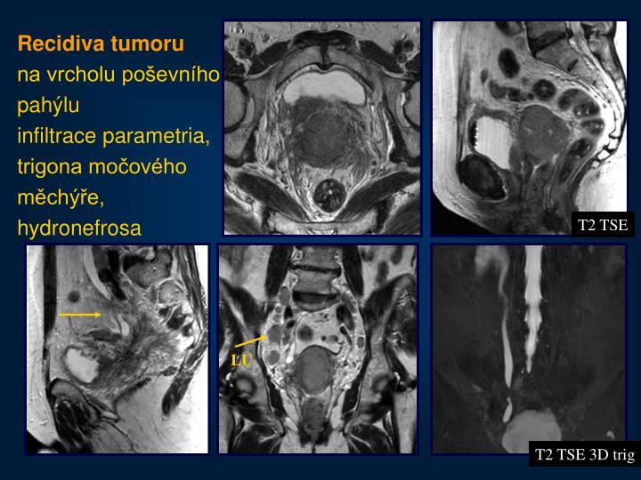Recidiva tumoru