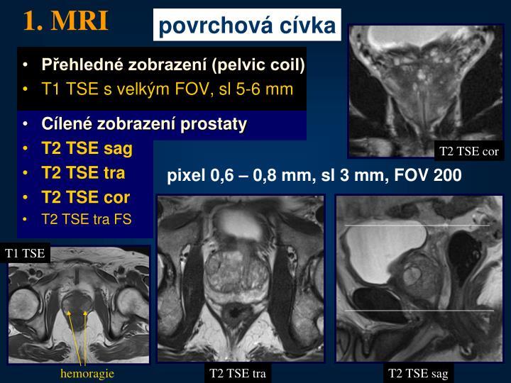 1. MRI