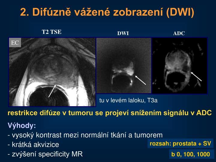2. Difúzně vážené zobrazení (DWI)