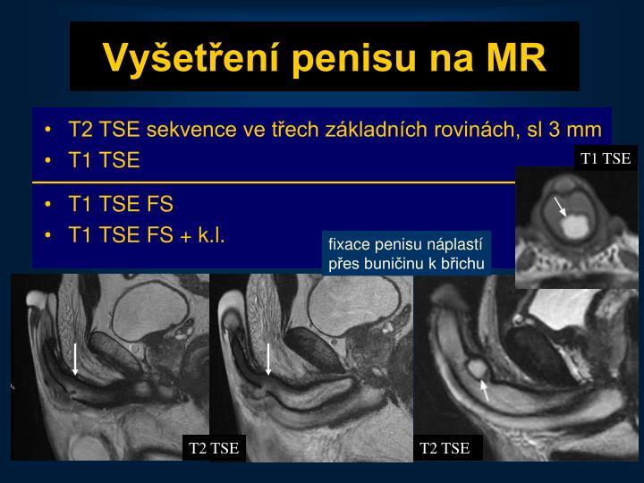 Vyšetření penisu na MR