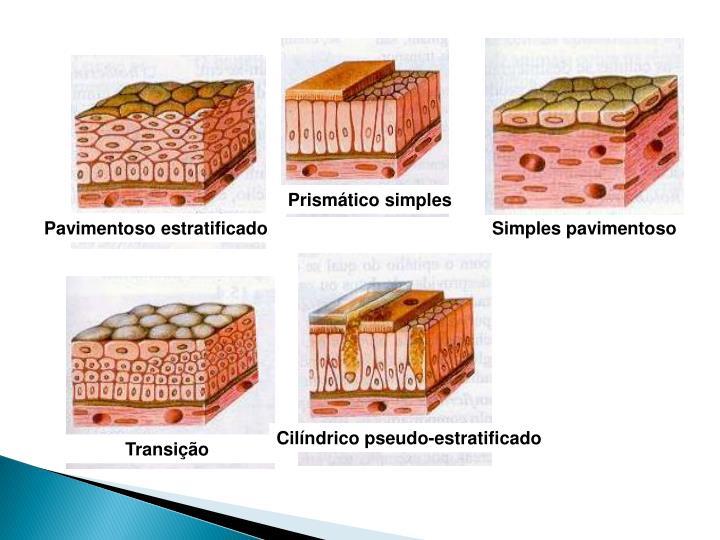 Prismático simples