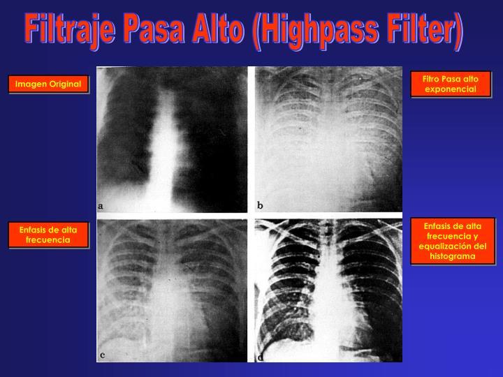 Filtraje Pasa Alto (Highpass Filter)