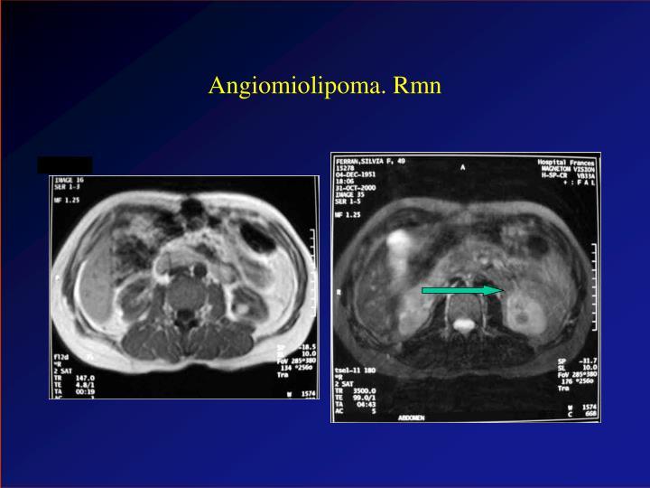 Angiomiolipoma. Rmn